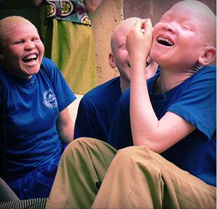 Francisco abre campanha de auxílio a albinos africanos