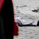 Testemunho: Jovem sofreu dois acidentes por imprudência
